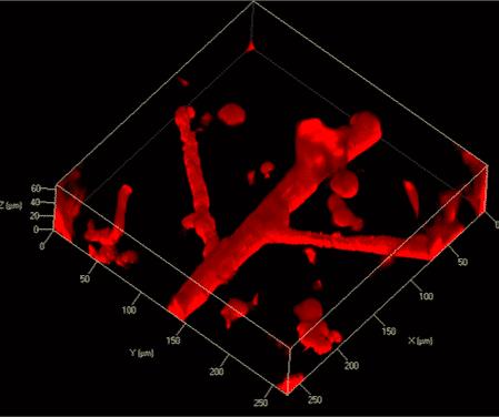 NanoOne Bio eignet sich auch für Anwendungen mit Endothelzellen aus humanen Nabelschnurvenen (HUVEC)   Foto: Xpect INX