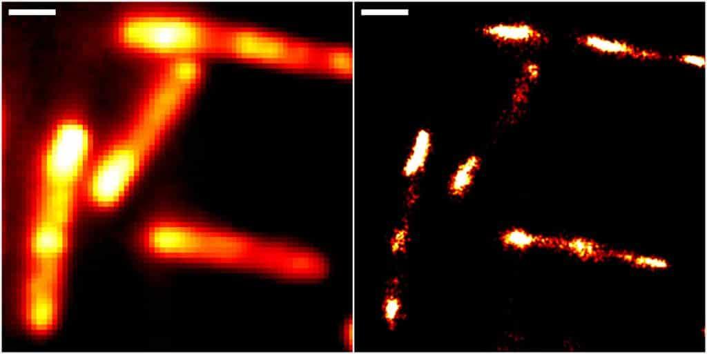 Abbildungen von Darmbakterien mit konventioneller Epifluoreszenzmikroskopie (links) und höchstauflösender Einzelmolekül-Lokalisationsmikroskopie unter Einsatz des neuen RhoBAST-Farbstoff-Marker-Komplexes zur Fluoreszenzmarkierung. Skalenbalken: 1 µm. | Bild: IPMB, KIT